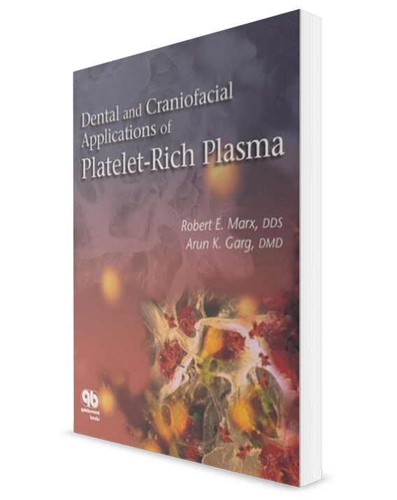 Dental And Craniofacial-Applications Of Platelet-Rich Plasma