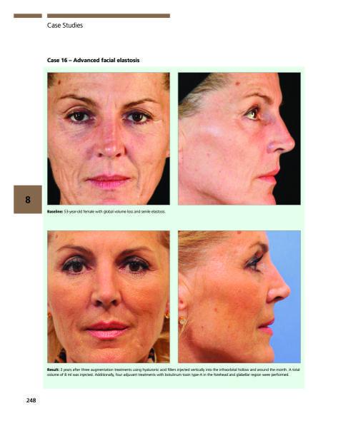 Approach combination facial invasive minimally rejuvenation textbook