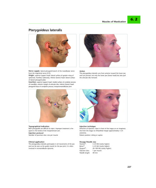 A Practical Guide to Botulinum Toxin Procedures - Rebecca ...